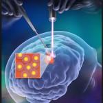 sclerosi-multipla-1