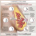 seno-zoom-kOqB-U432303701451383U-1224x916@Corriere-Web-Sezioni-593x443